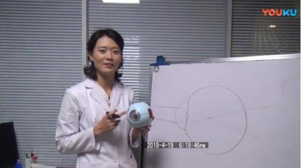 角膜塑形镜如何矫正近视
