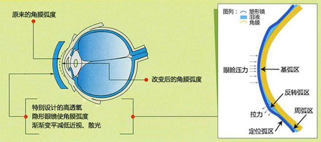 角膜塑形镜的作用原理