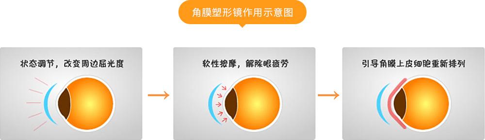 角膜塑形镜作用示意图