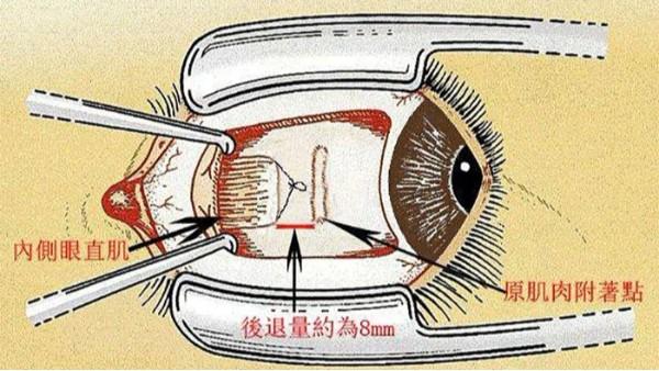 衡水斜视手术后注意事项都要注意什么