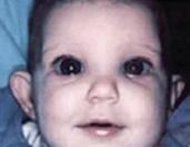 婴幼儿型青光眼:婴幼儿也可能发生青光眼,其危害性更大
