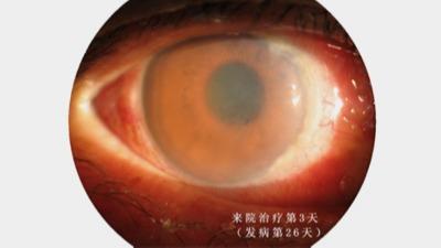 复明医院王力文:治疗角膜内皮炎1例
