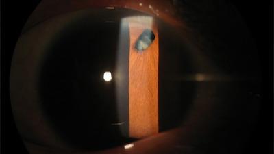 高度近视先天性瞳孔上移合并白内障过熟期及晶体半脱位病历分析1例