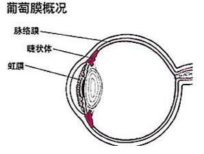 葡萄膜炎危害视力,致盲率高