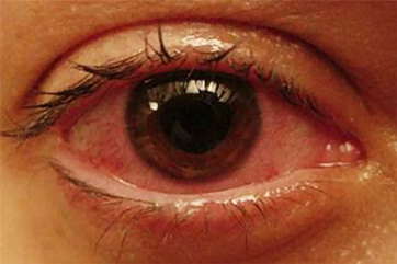 常见疾病为什么常常导致病人失明
