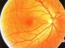 高度近视的危害主要在于并发症